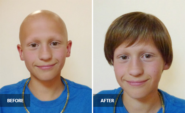 hair loss charity